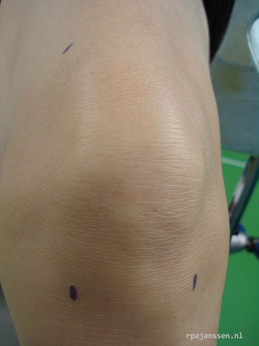 Arthroscopy: 3 small skin incisions