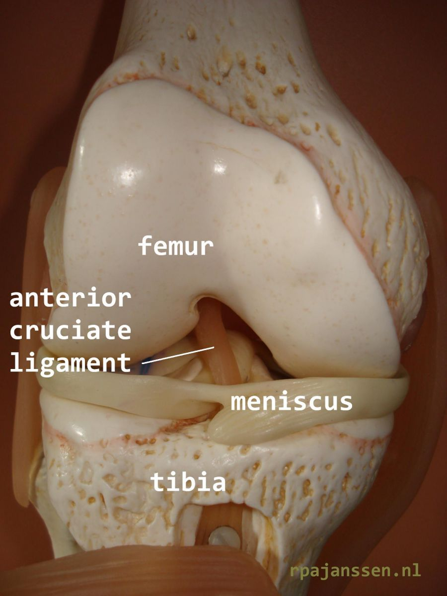 Frontal view of the knee with anterior cruciate ligament (also shown femur, meniscus and tibia)